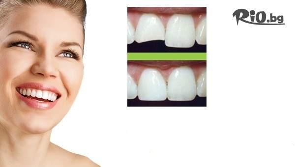 Бондинг - поставяне на фасета от висококачествен композитен материал, естетическо възстановяване на зъб c 53% отстъпка, от д-р Светлана Тукусер