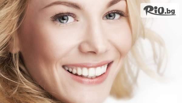 Бондинг - поставяне на фасета от висококачествен композитен материал, естетическо възстановяване на зъб, от Стоматологичен кабинет Д-р Лозеви