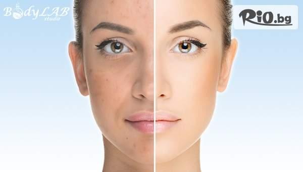Карбонов пилинг на лице против акне, неравномерен тен, разширени пори и повърхностни бръчки, от новооткритото BodyLab Studio