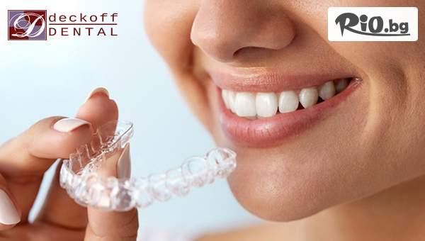 Индивидуална шина за Бруксизъм + стоматологичен преглед, от ДЕКОВ ДЕНТАЛ
