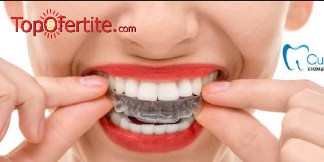 """Погрижете се за зъбите си в Дентална клиника """"CityDent""""! Включени Прозрачни невидими алайнери"""