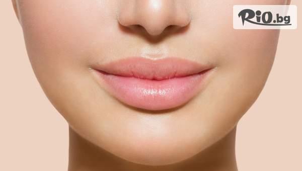 Уголемяване на устни или запълване на бръчки с 0.5мг дермален филър Juvederm или Filorga с Injector Pen, от Студио за красота Diamond House