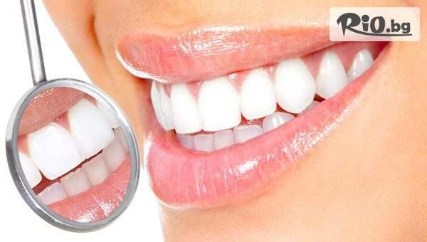 Eстетично възстановяване на преден зъб с висококачествена фотополимерна фасета, от Eвровита Дентал