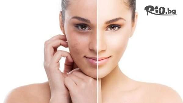Грижа за кожата от Tesori Beauty Salon! Включва Изсветляваща терапия за лице Profiderm на специална цена!